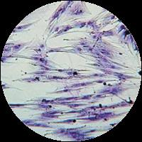 CFU-F (colony-forming unit – fibroblast)